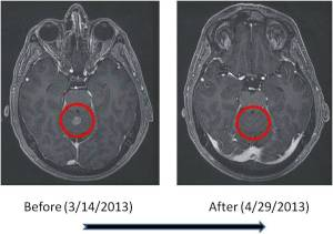MRI Before & After